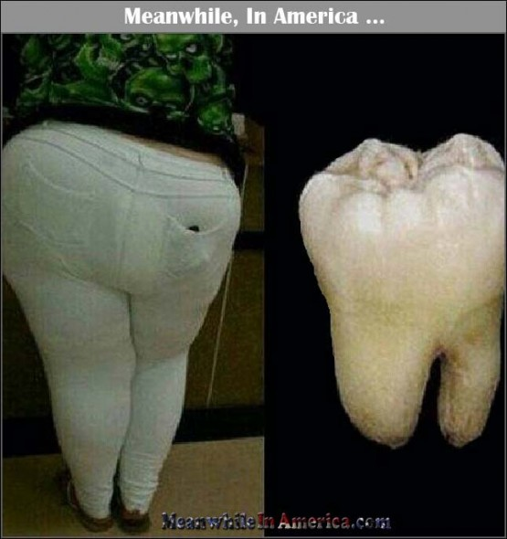 built like a tooth Meanwhile In America